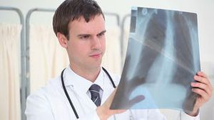 Serious surgeon looking at a chest xray