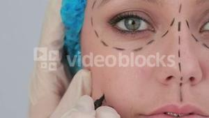 Video of woman with hair net and black dashes lines for a face lift