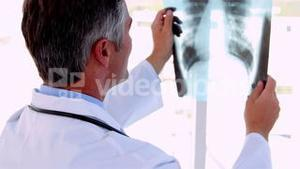 Doctor holding x-ray up to study it