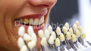Dentist holding teeth shades against female patient